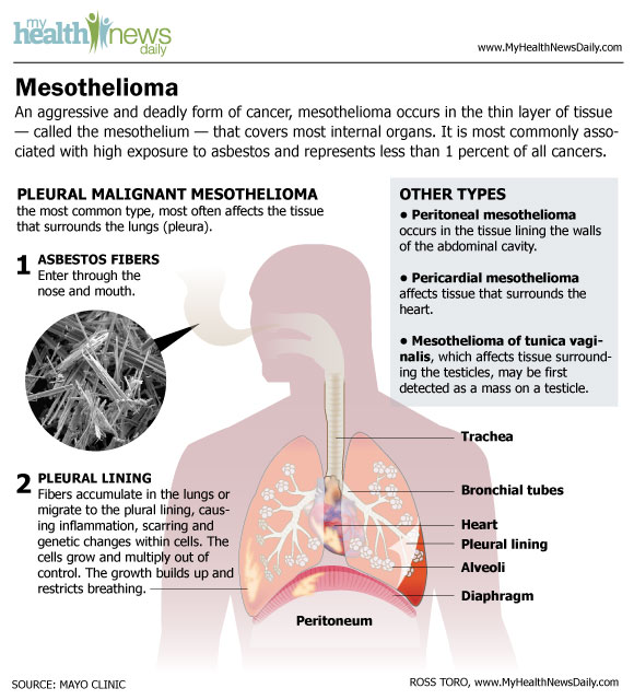 Mesothelioma Infographic - Symptoms and Asbestos Cancer Treatment